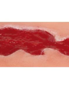 Simulatore per Ginecologia - Addestramento Isteroscopia - Erler Zimmer R10184
