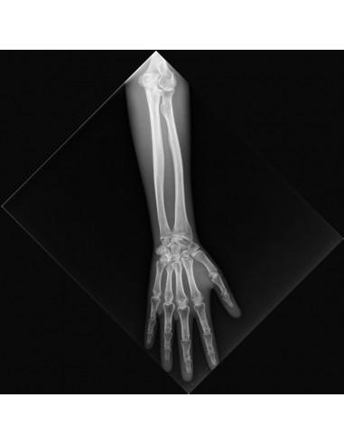 Simulatore per radiologia - Braccio -...