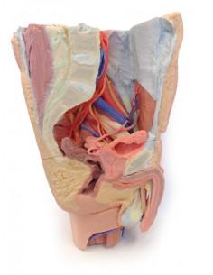Erler Zimmer, modello anatomico didattico cancro ai polmoni