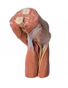 Erler Zimmer, modello anatomico didattico funzionale di polmoni