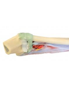 Erler Zimmer,  modello anatomico di 'occhio con cataratta, ingrandito F80
